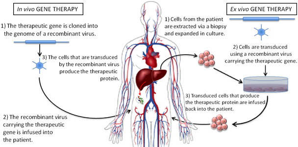 the characteristics diagnosis and possible use of gene therapy as a treatment for achondroplastic dw Characteristics of somatoform disorders therapy once the diagnosis is made and the patient accepts the treatment of somatoform disorders with st.